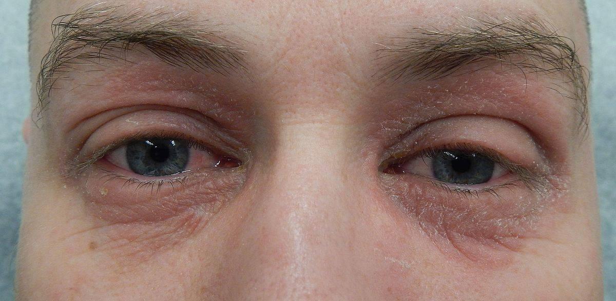 Что делать, если шелушатся и чешутся веки – причины и лечение