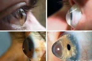 Срок годности контактных линз для глаз в закрытой упаковке и с момента открытия - что будет, если одеть просроченные