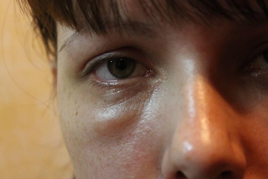 Мешки под глазами  у женщин, о чем говорят, причины и лечение