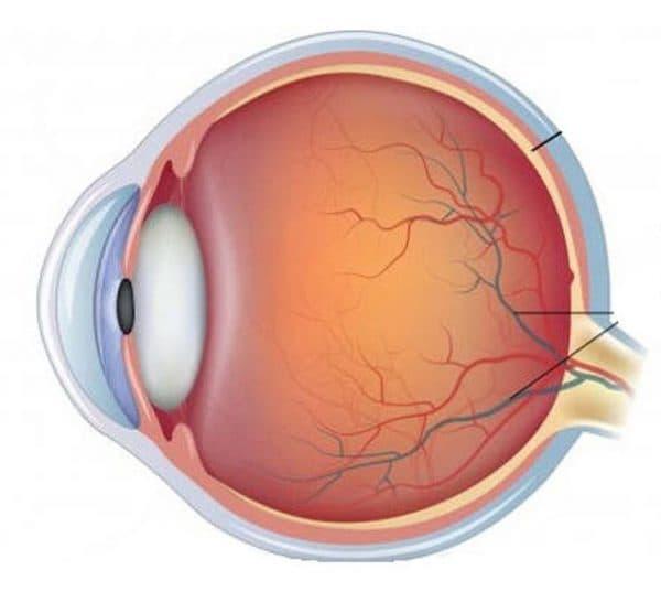 Что такое ангиопатия сетчатки глаз