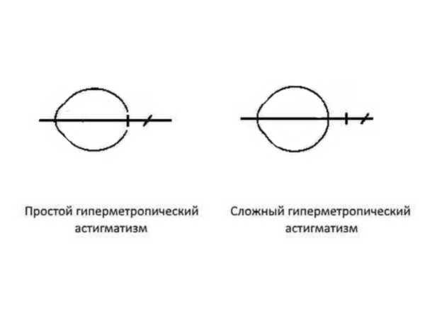 Миопический астигматизм (близорукий): причины, лечение болезни