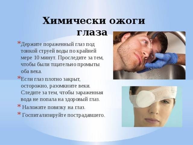 Ожог глаз сваркой: чем лечить, что делать, первая помощь, капли для лечения роговицы