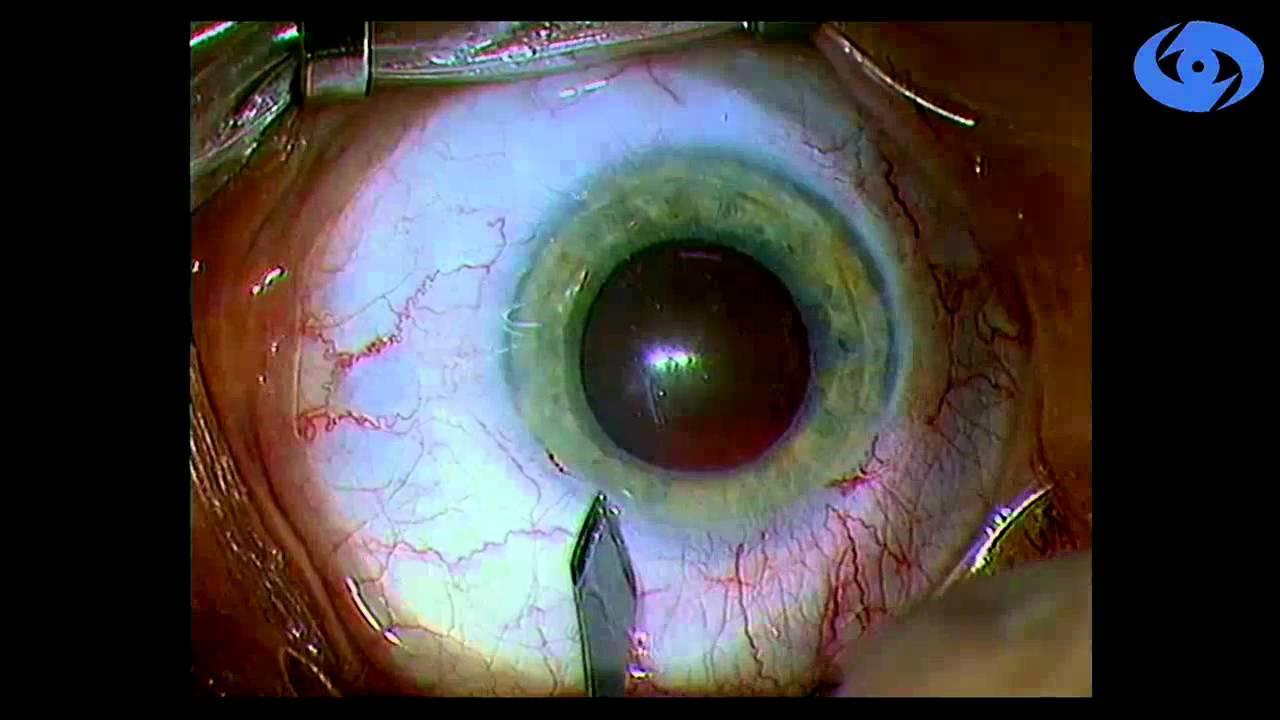 После склеропластики падает зрение