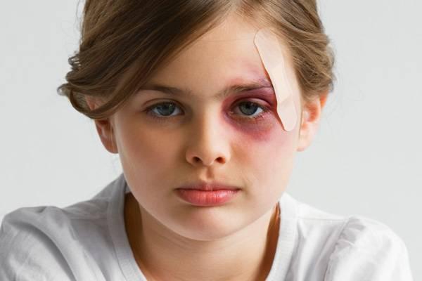 Какие препараты лучше использовать при лечении синяков у детей
