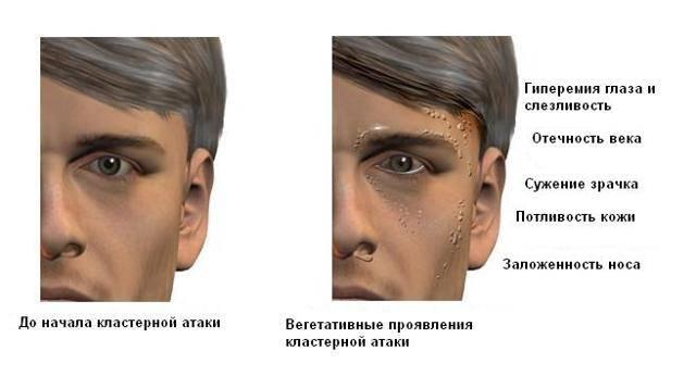 Если болит правая сторона головы и правый глаз