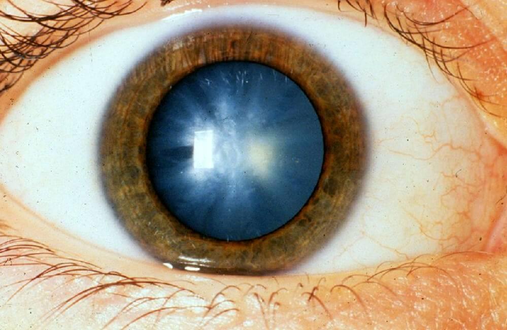 Что такое факосклероз (уплотнение хрусталика глаза)