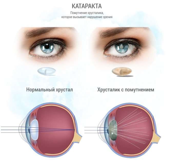 Катаракта: причины, симптомы, диагностика и лечение