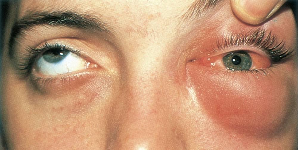 Почему появляется экзофтальм. лечение болезни с поправками на ее разновидности.