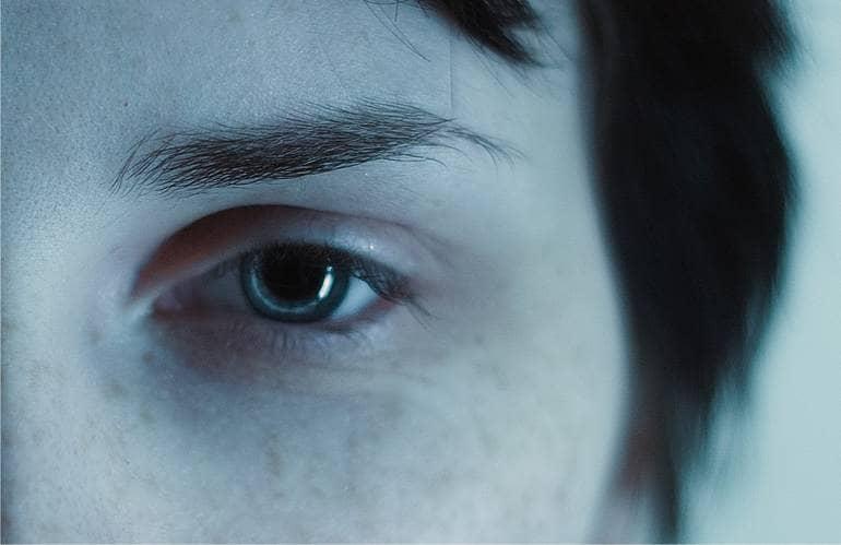 Темные круги под глазами: причины.
