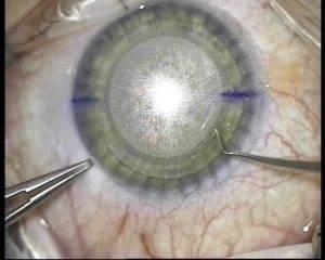 Как восстанавливается зрение после лазерной коррекции
