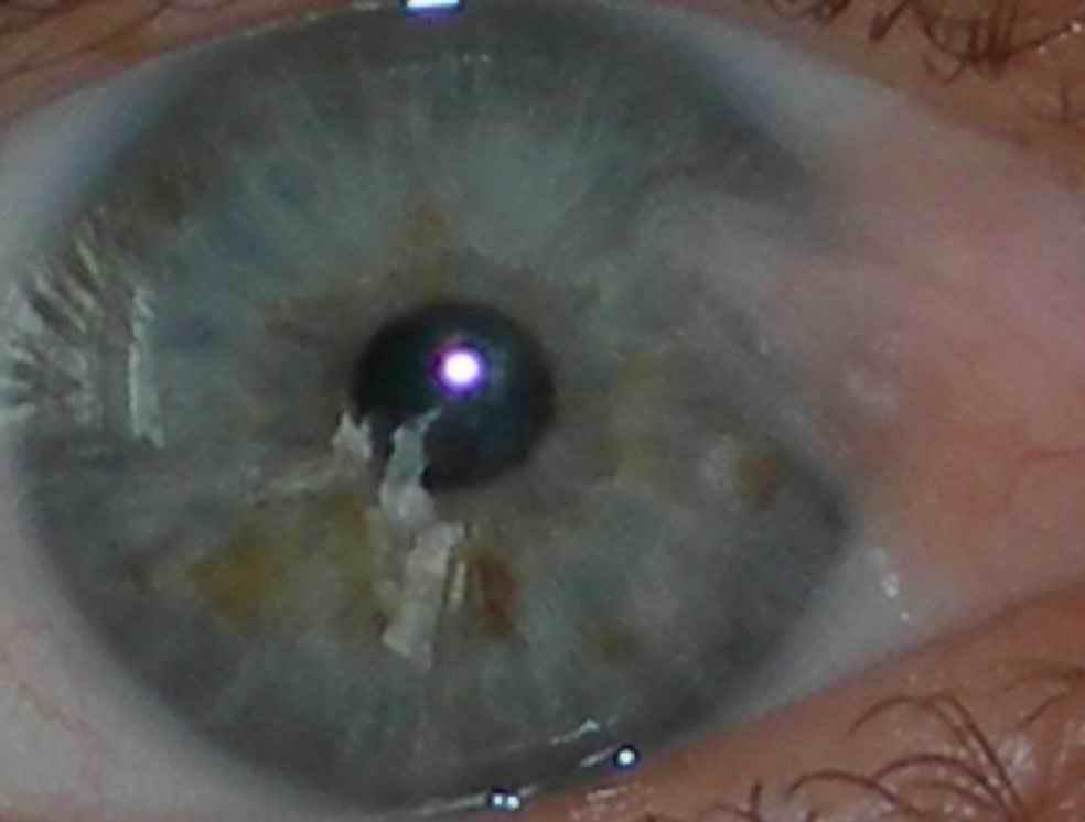 Мутные глаза у человека – каковы причины помутнения
