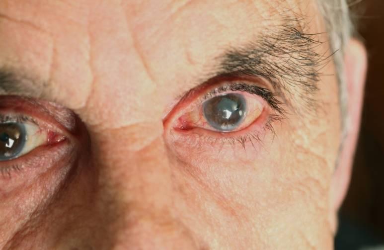 Что такое помутнение хрусталика глаза