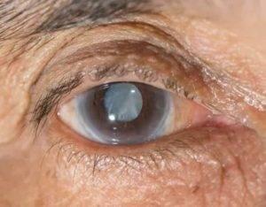 Резко перестал видеть глаз пелена какая то. сочетание помутнения зрения и головокружения. когда пелена сопровождается сопутствующими симптомами.