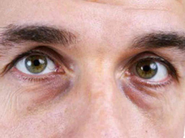Мешки под глазами: причины отеков, что делать, чтобы убрать отечность, обзор 6 средств
