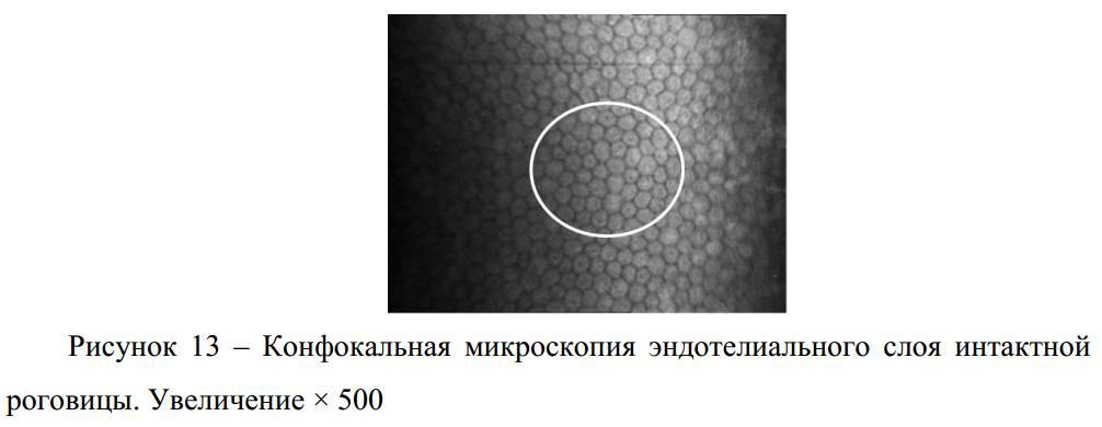 Эндотелиальная микроскопия роговицы - что это, как проходит, расшифровка результатов