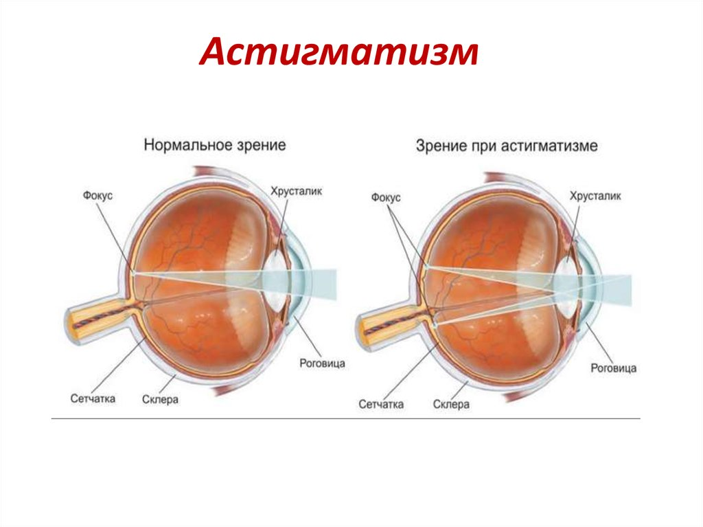 Проблема миопического астигматизма – как развивается и лечится патология зрения