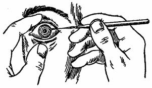 Что-то попало в глаз и не выходит: порядок действий, обзор методов, отзывы