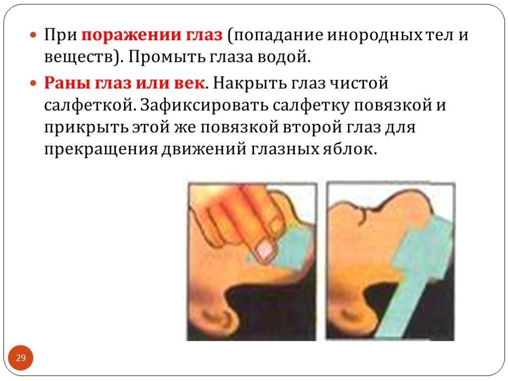 Травма глаза (повреждение роговицы): лечение, классификация, последствия