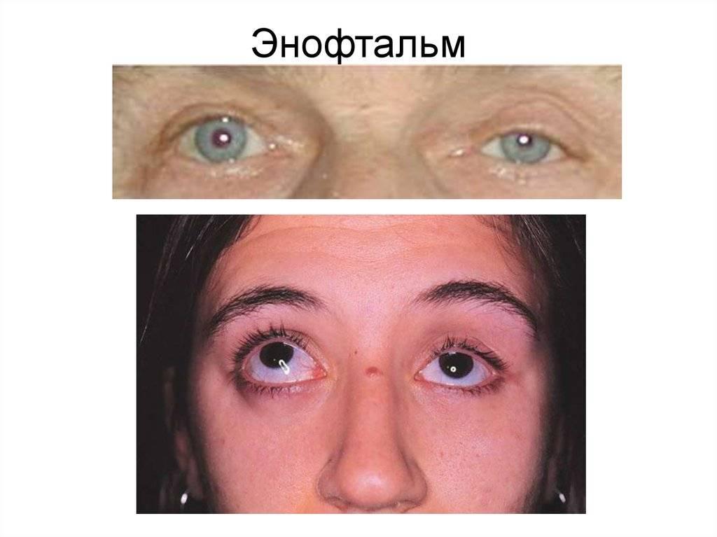 Экзофтальм одного глаза: причины одностороннего смещения, прогноз излечения