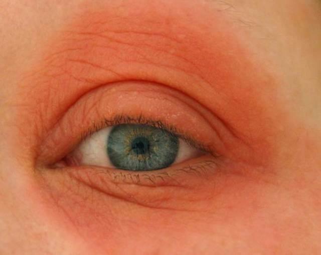 Глаз покраснел и болит: почему так происходит, что делать, когда возникла проблема