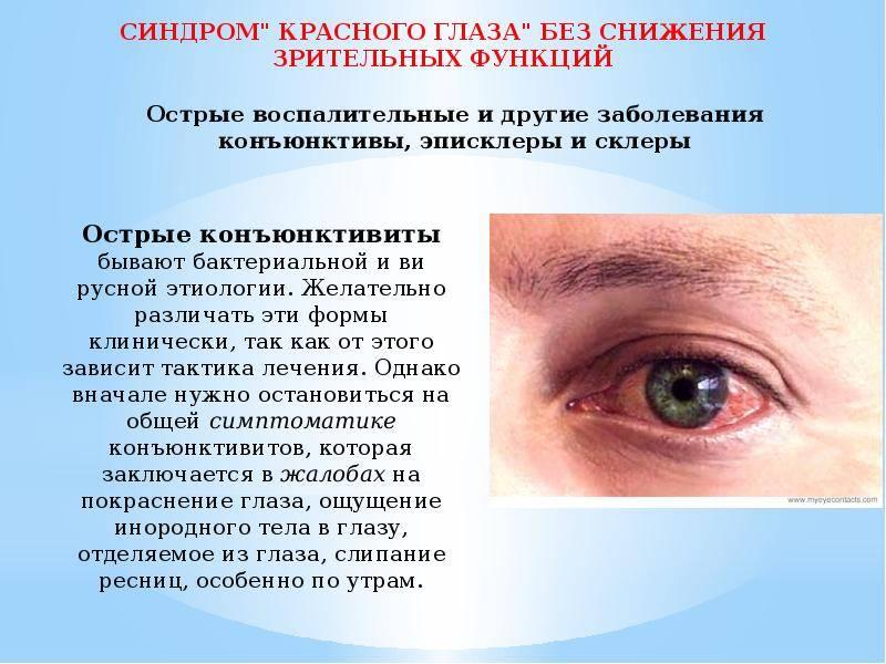 Синдром сухого глаза у ребенка: симптомы и лечение, как отличить ссг от конъюнктивита у детей