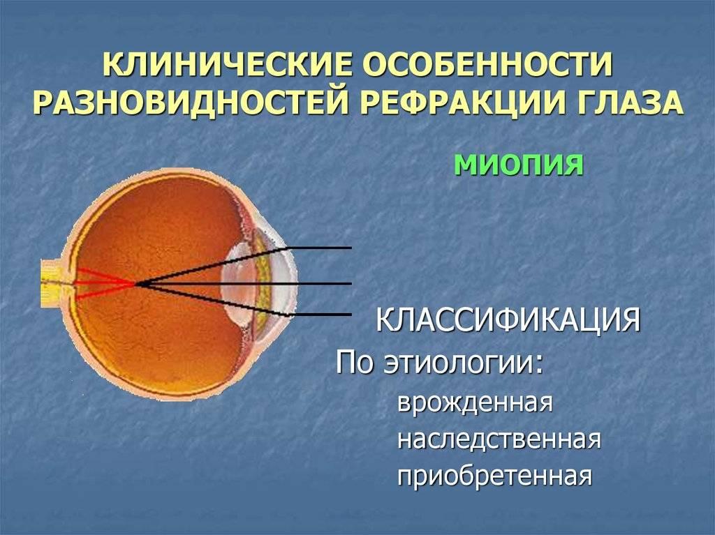 Формы и виды нарушения рефракции глаза