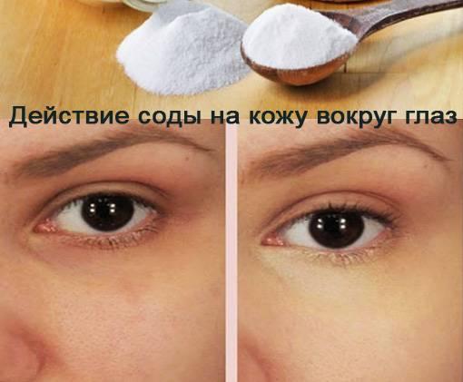 Как избавиться от синяков под глазами: 20 эффективных способов