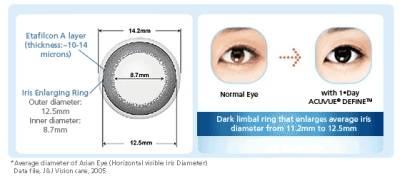 Какой линейкой изменяют роговицу: как узнать размер глаз для линз и диаметр изделий? как определить и выбрать размер контактных линз для глаз торические линзы диаметр 14 или 2.