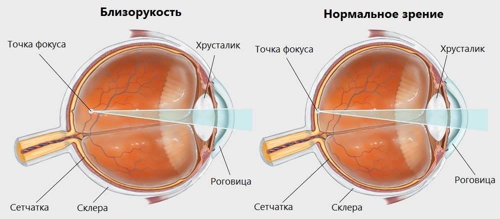 Степени миопии: высокая, средняя и слабая степени миопии глаза (близорукость 1, 2 и 3 степени)