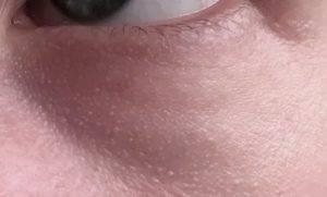 Белые прыщики на лице: виды, причины, лечение