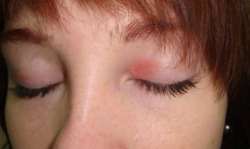 Красное пятно под глазом: причины появления, способы лечения и методы профилактики