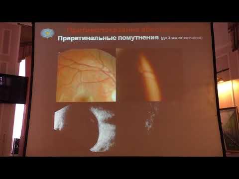 """Лазерное лечение при деструкции стекловидного тела - методика, показания и противопоказания, цены в москве! - moscoweyes.ru - сайт офтальмологического центра """"мгк-диагностик"""""""