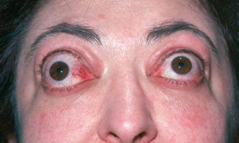 Травма глаза. отзывы и вопросы.