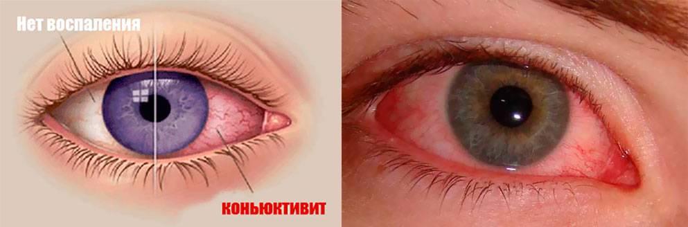Конъюнктивит: симптомы (фото) и лечение у взрослых и детей