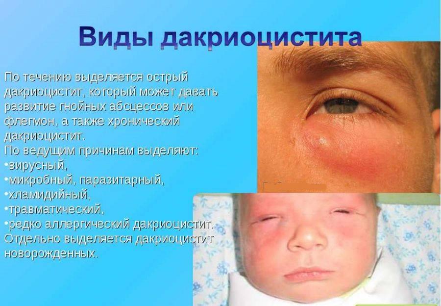 Особенности лечения воспаления слёзного канала