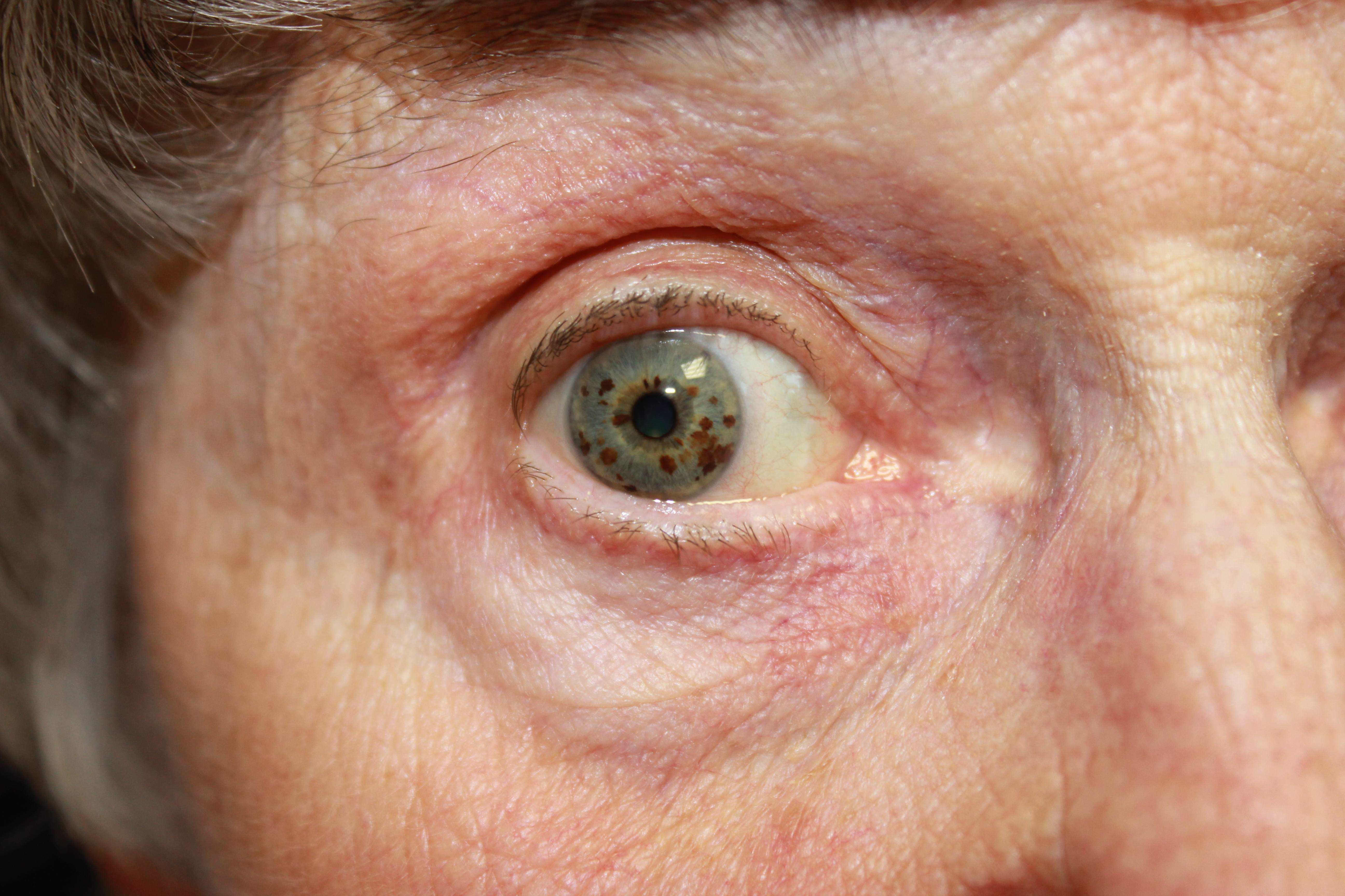 Микрофтальм (yменьшение глазного яблока): причины и лечение