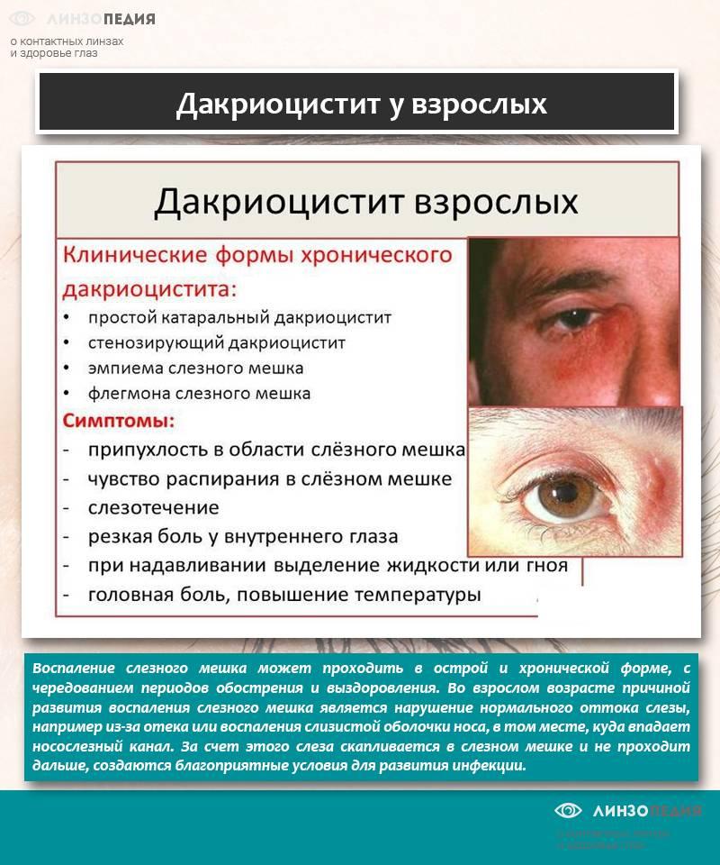 Заболевания слезных органов. диагностика и лечение