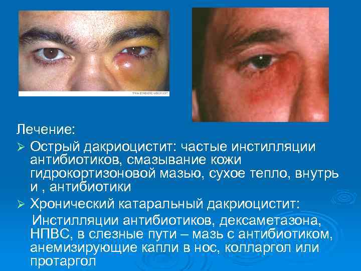 Дакриоцистит: что это такое, причины, симптомы, лечение, прогноз