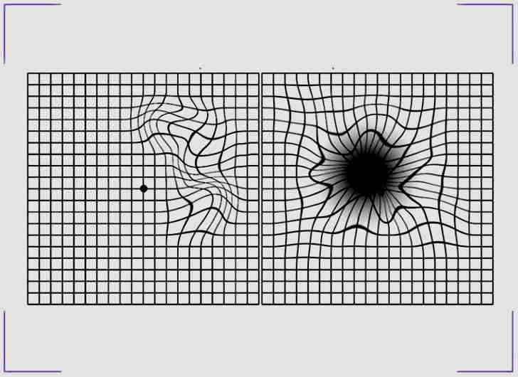 Как использовать тест амслера для проверки зрения
