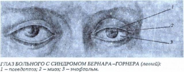 Миоз глаза, симптомы, лечение, причины