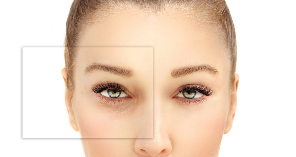 Искажение зрения одного глаза