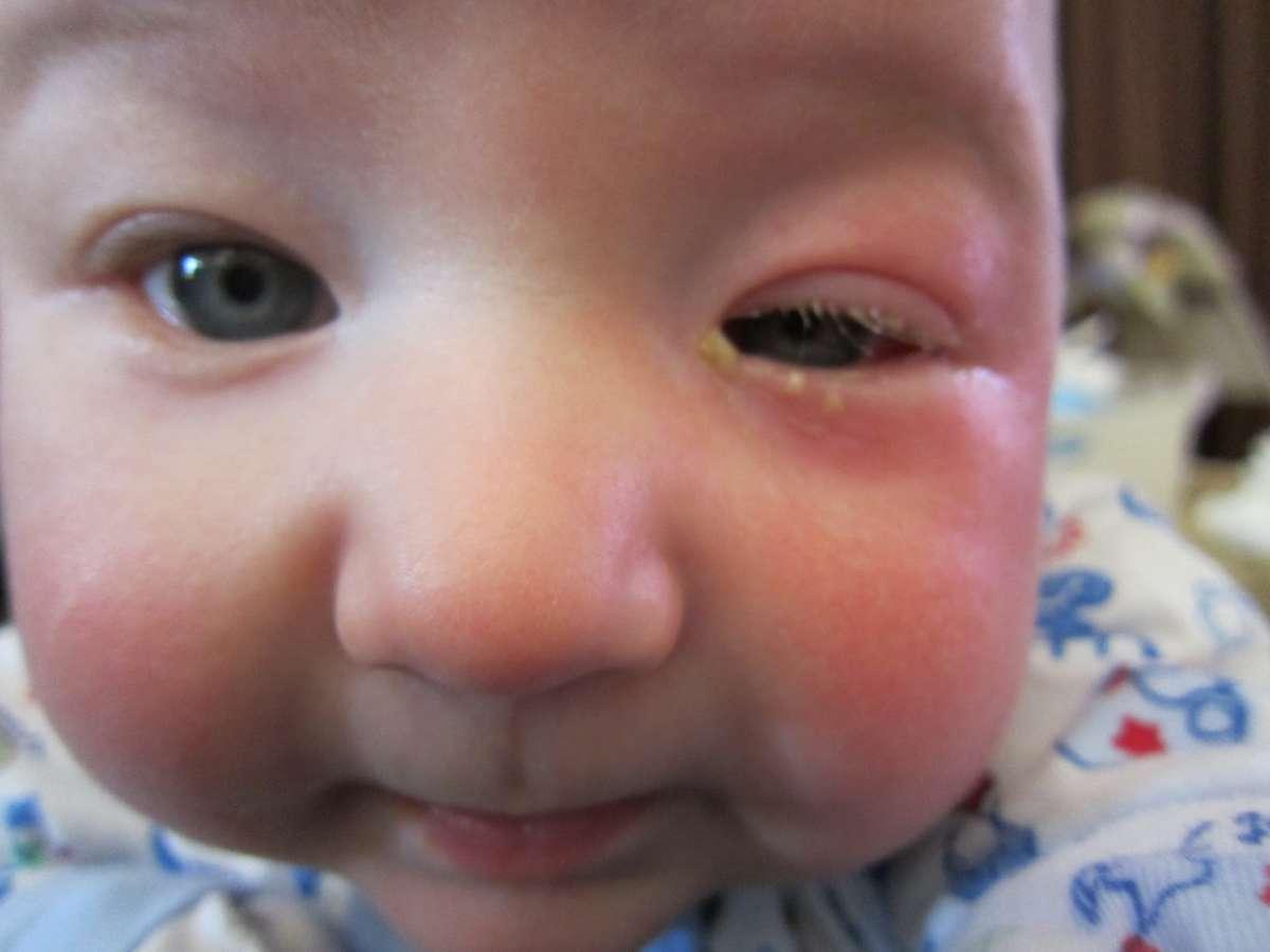 Слезится глаз у грудничка: что делать со слезотечением глазок у 2 и 3 месячного новорожденного