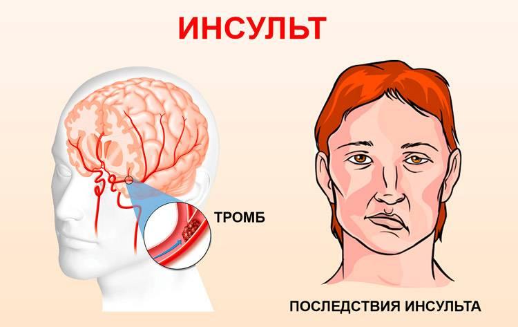 Инсульт глаза – симптомы и лечение