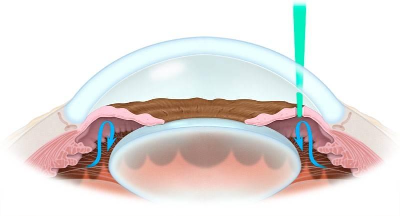 Лазерная трабекулопластика: операция при глаукоме (описание)