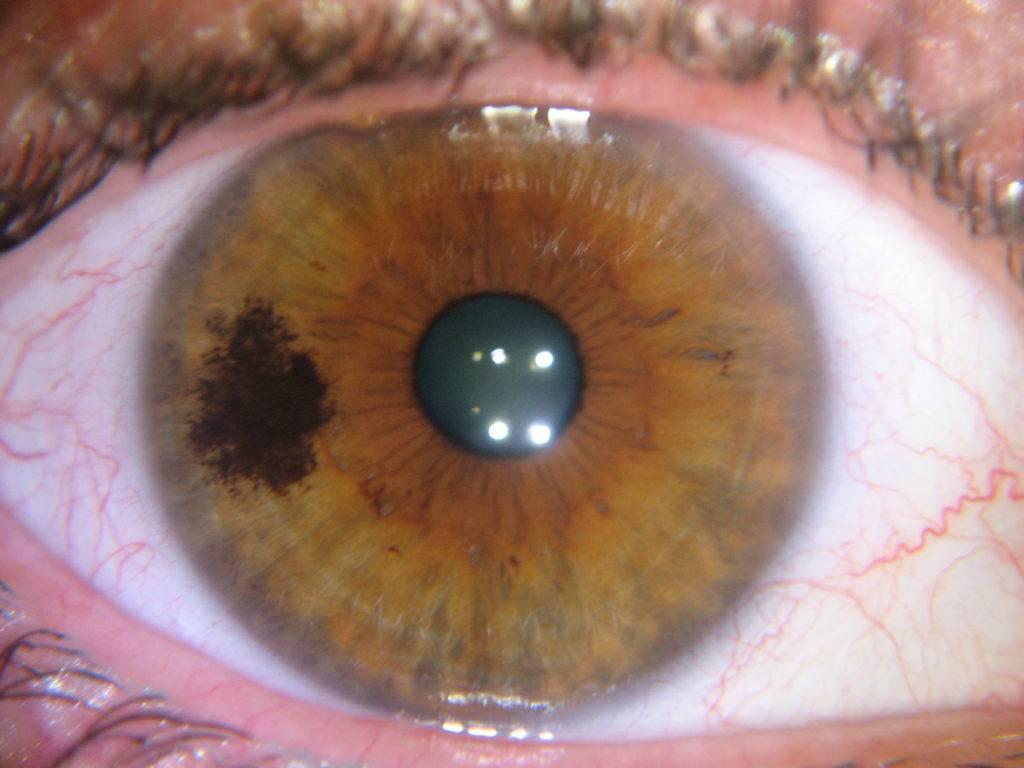 Желтое пятно на глазном яблоке возле зрачка: причины появления и фото