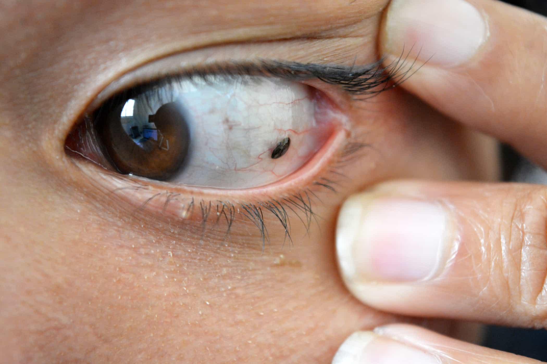 Контактная оптика таит в себе угрозу зрению? может ли линза закатиться за глазное яблоко