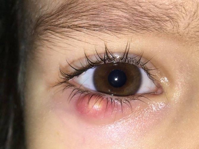 Лекарство от ячменя на глазу - как и чем лечить медикаментозно