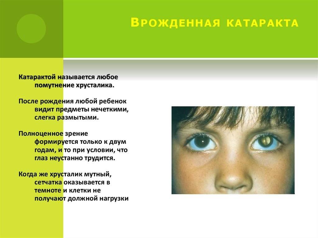 Катаракта - причины, симптомы, диагностика и лечение