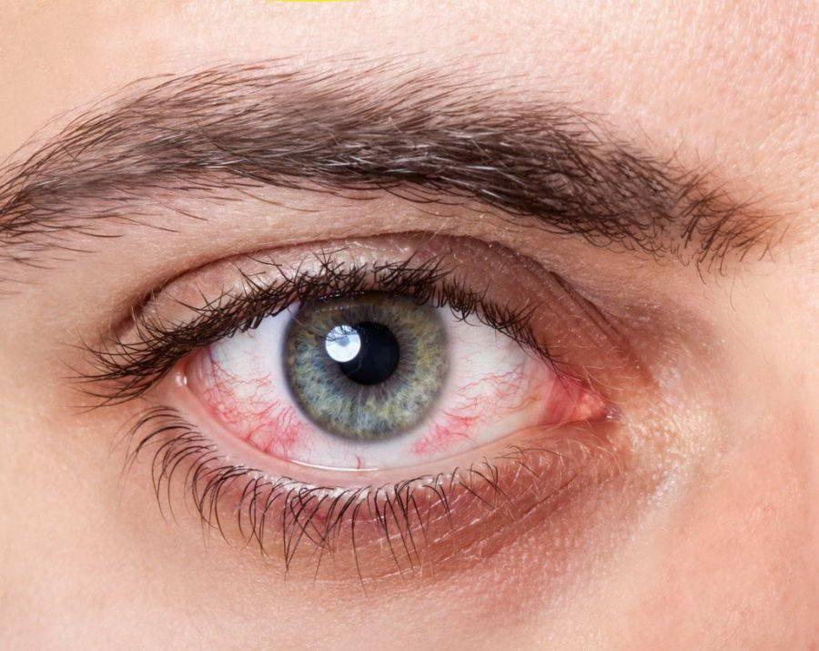 Чешутся ли глаза при коронавирусе, могут ли болеть, слезиться или краснеть