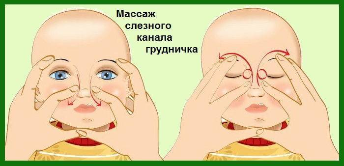 Гноится глаз у грудничка, опух и слезится: причины, что делать и чем лечить?